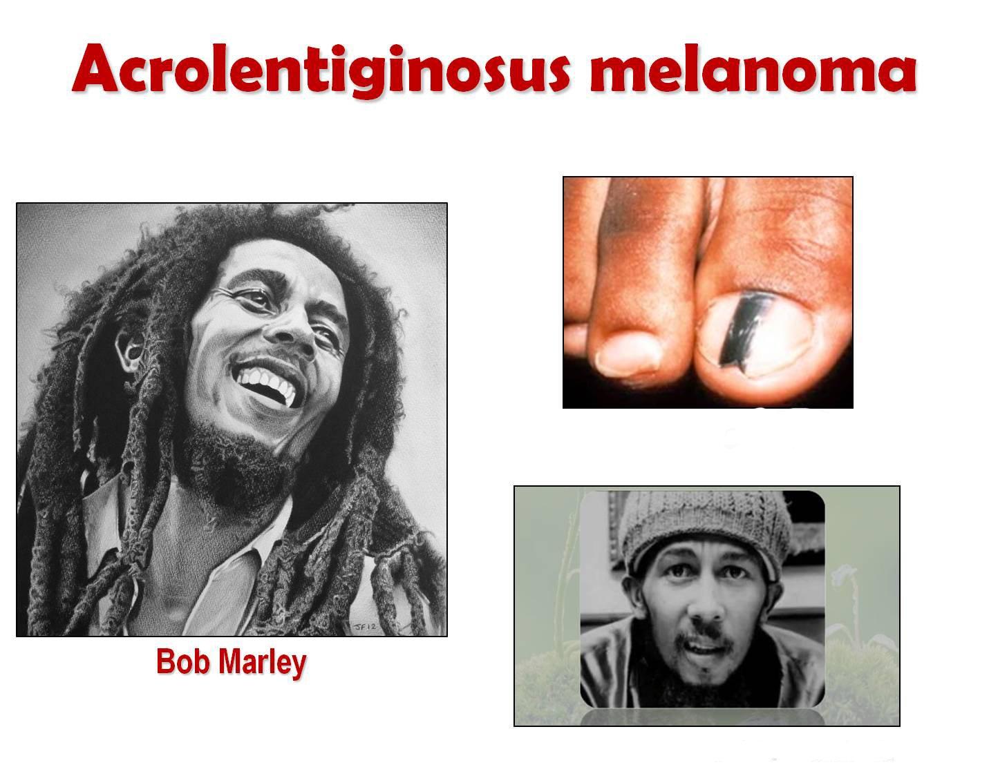 bob-marley-melanoma