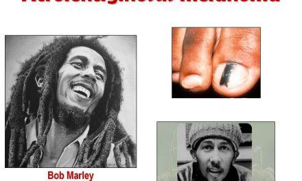 Bob Marley Hemi Ded Blong Skin Cancer – Yu Tu Mus Luk Aot Long Sun Se Fram Hemi Save Burnem Yu Big Wan